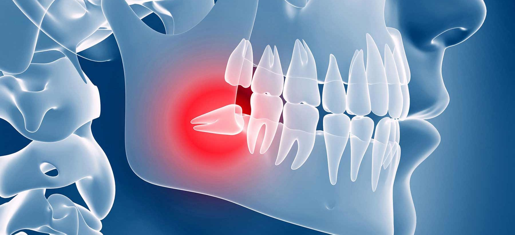 Статья: Нужно ли удалять зуб мудрости?