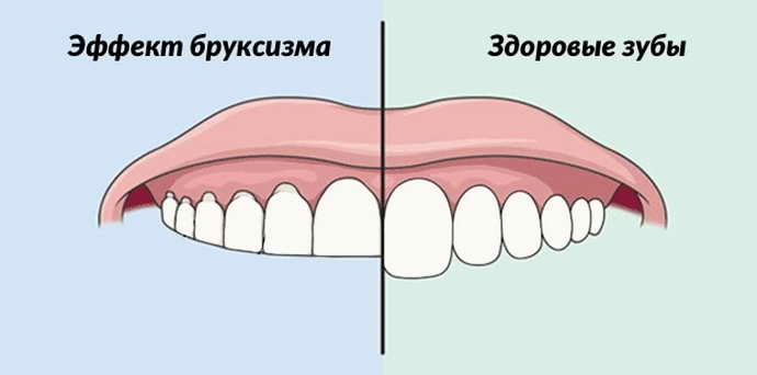 Симптомы скрежета зубами во сне