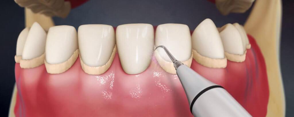 Процедура удаления зубного камня